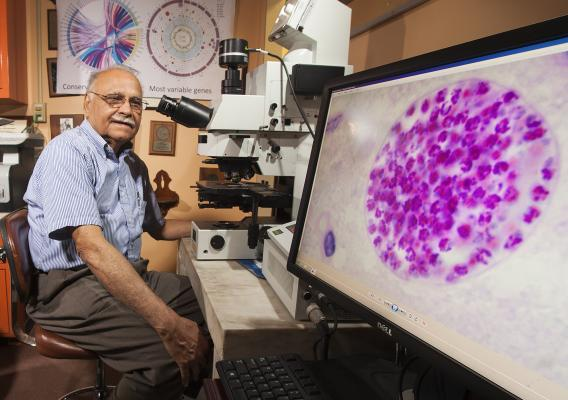 ARS parasitologist Jitender Dubey examines a Toxoplasma gondii specimen with a compound microscope