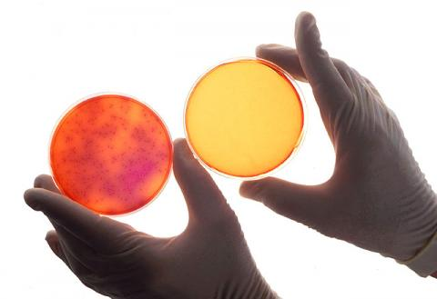 The petri dishes show sterilization effects of negative air ionization on a chamber aerosolized with Salmonella enteritidis. The left sample is untreated; the right, treated